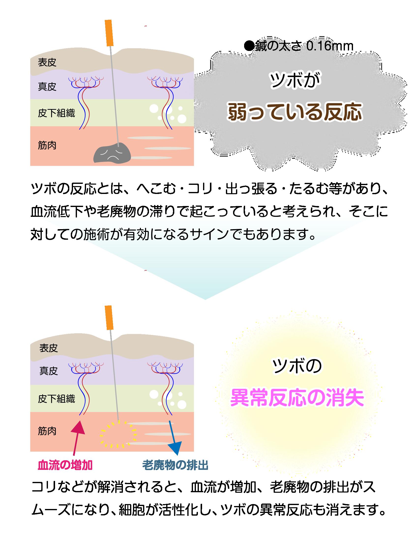 頻尿・過活動膀胱の原因である冷えとストレスに良いツボを選んで施術します|鎌ヶ谷市(新鎌ヶ谷)