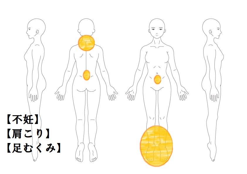 不妊症例5:男性不妊がある妊活|鎌ヶ谷市(新鎌ヶ谷)の鍼灸院
