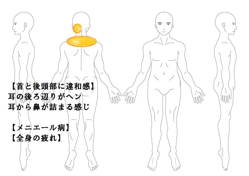首肩コリ症例2:首から後頭部の違和感|鎌ヶ谷市(新鎌ヶ谷)の鍼灸院