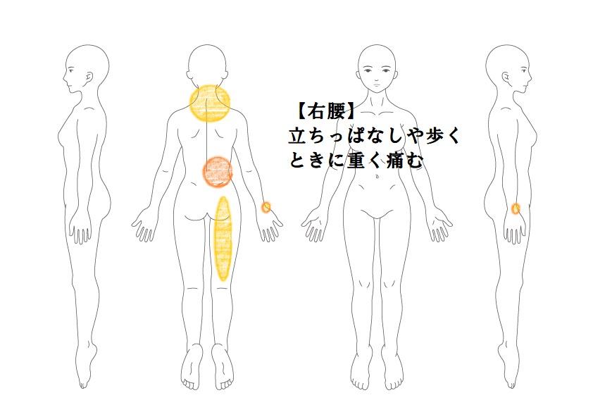 腰痛症例1:病院では「年のせいと」言われた腰痛|鎌ヶ谷市(新鎌ヶ谷)鍼灸院