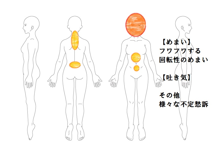 めまい症例1:フワフワ回転性のめまい