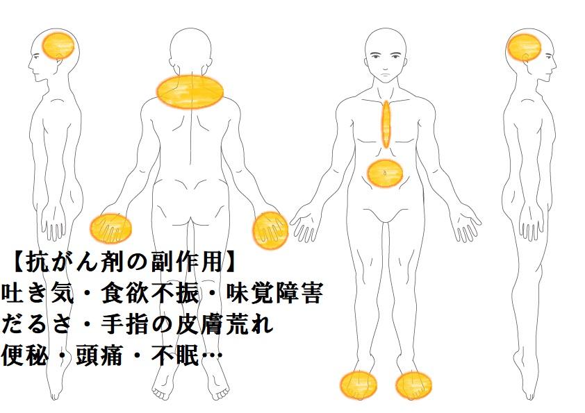その他症例3:抗がん剤の副作用(吐き気・食欲不振)|鎌ヶ谷市(新鎌ヶ谷)の鍼灸院