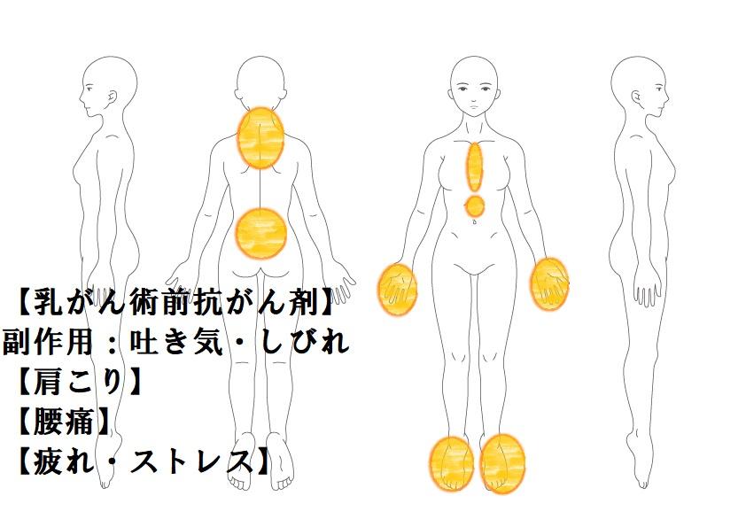 その他症例4:抗がん剤の副作用(吐き気・頭痛)|鎌ヶ谷市(新鎌ヶ谷)の鍼灸院