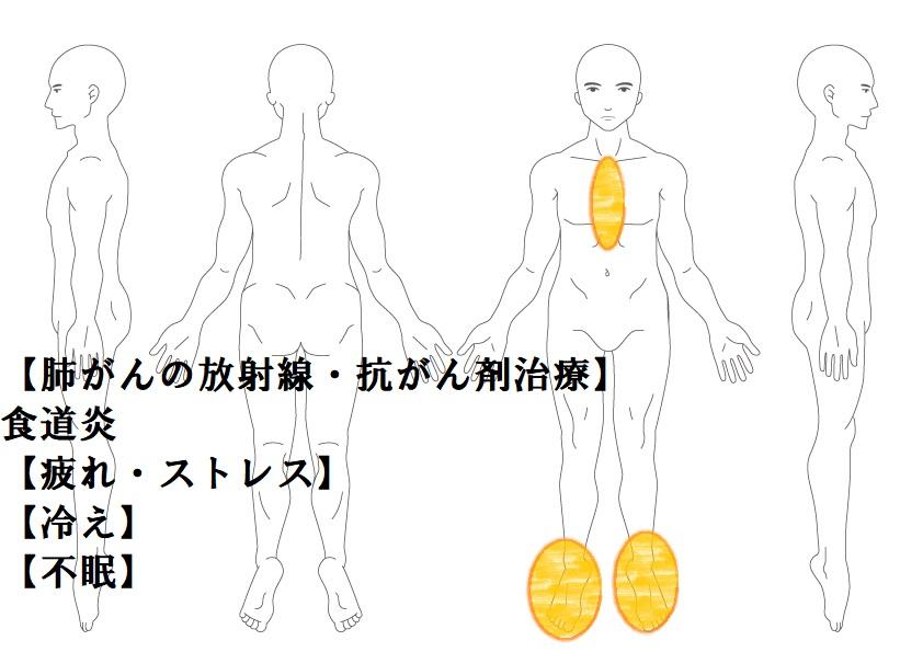 その他症例5:放射線の副作用(食道炎)