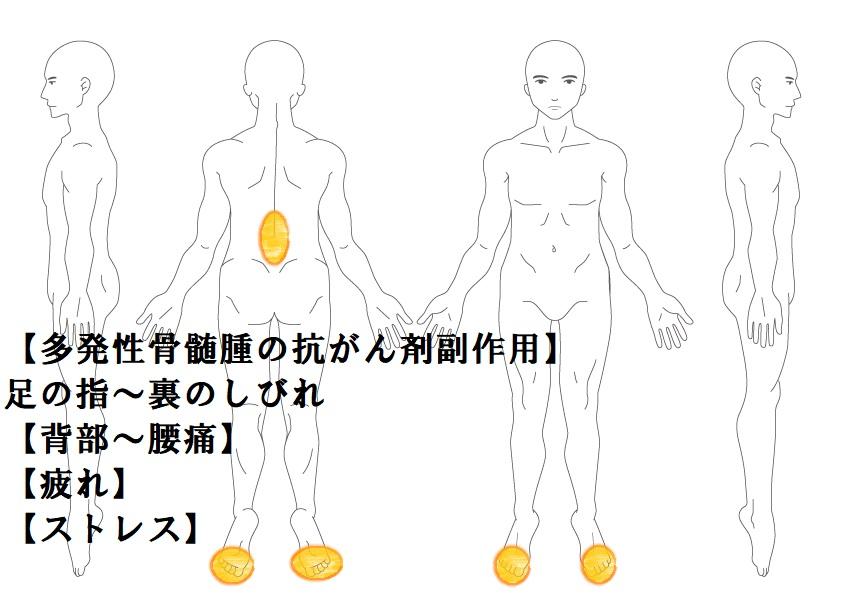 その他症例6:抗がん剤の副作用(足裏しびれ)|鎌ヶ谷市(新鎌ヶ谷)の鍼灸院