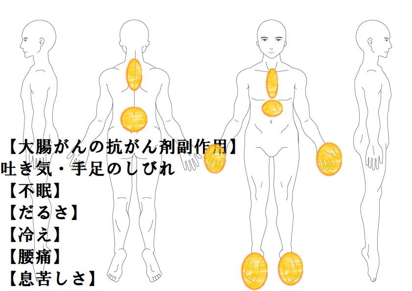 その他症例7:抗がん剤の副作用(手足しびれ)