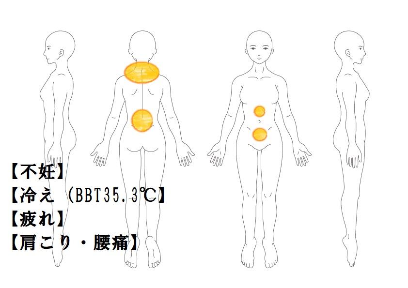 婦人科症例7:一人目不妊