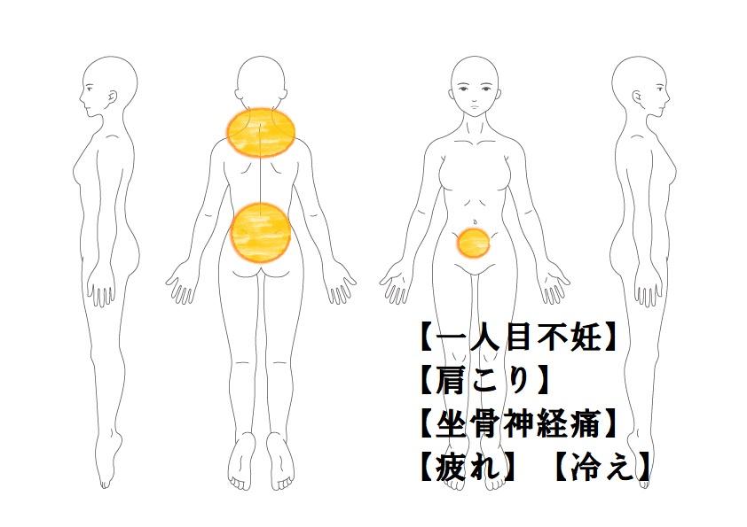婦人科症例8:一人目不妊