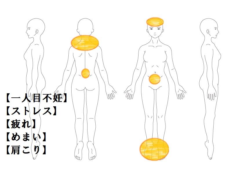 婦人科症例9:一人目不妊