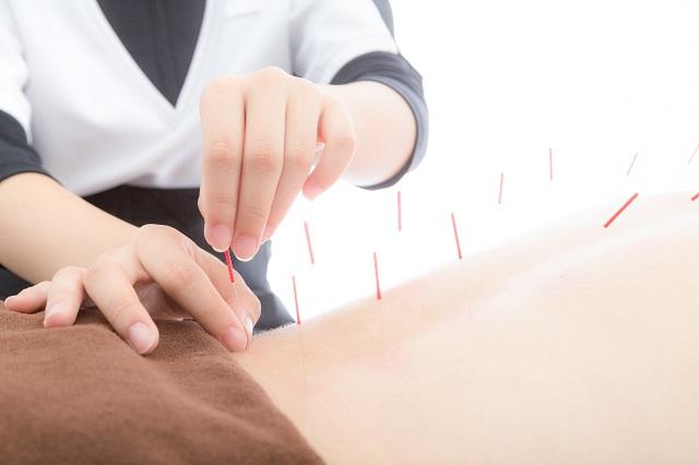 鍼はプラセボか?|千葉県|松戸・船橋・鎌ヶ谷|鍼灸治療院
