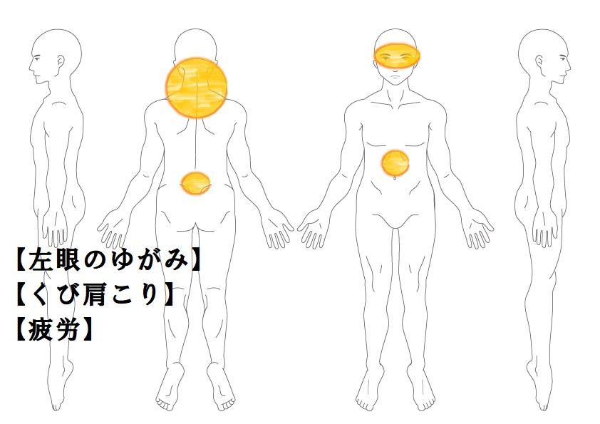 黄斑変性(目のゆがみ)