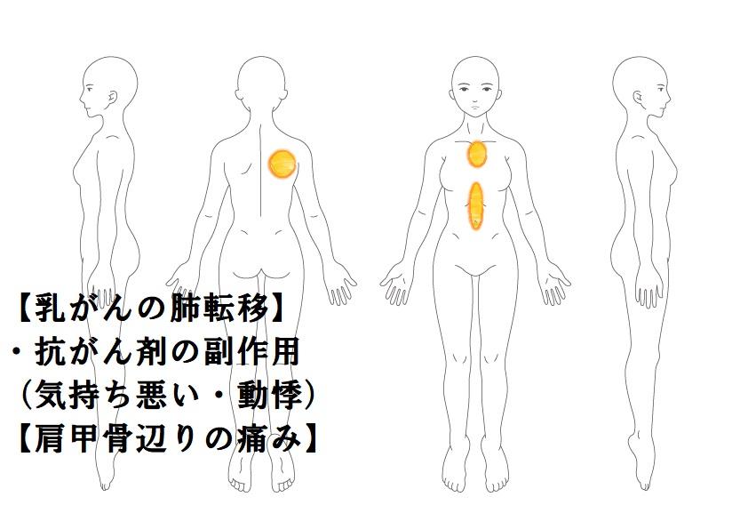 乳がんの肺転移|鎌ヶ谷市(新鎌ヶ谷)の鍼灸院