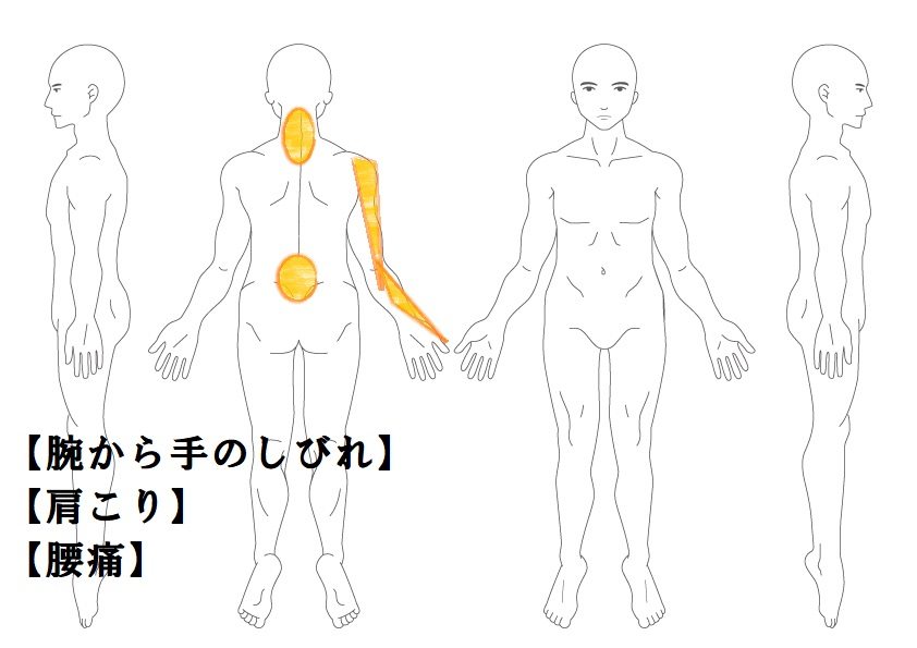 首肩症例1:右腕から手のしびれ|鎌ヶ谷市(新鎌ヶ谷)の鍼灸院