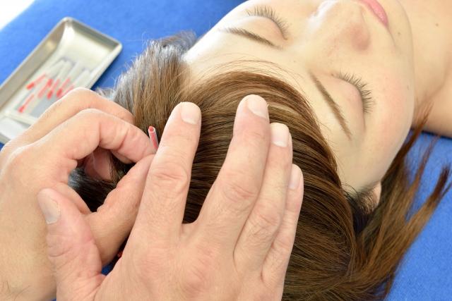 頭鍼|鎌ヶ谷市(新鎌ヶ谷)の鍼灸院