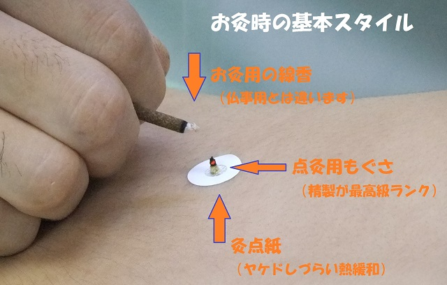 夏にお灸|千葉県|鎌ヶ谷・船橋・松戸|鍼灸治療院