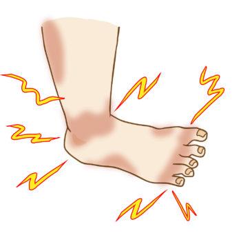 糖尿病性末梢神経障害による両下肢感覚異常に対する鍼治療|千葉県|松戸・船橋・鎌ヶ谷|鍼灸治療院