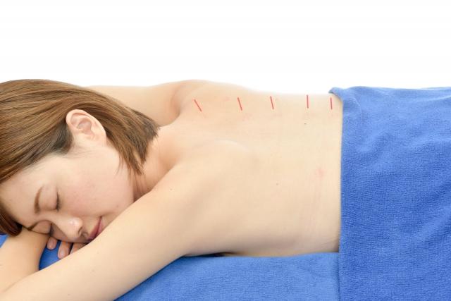 慢性痛の鍼灸