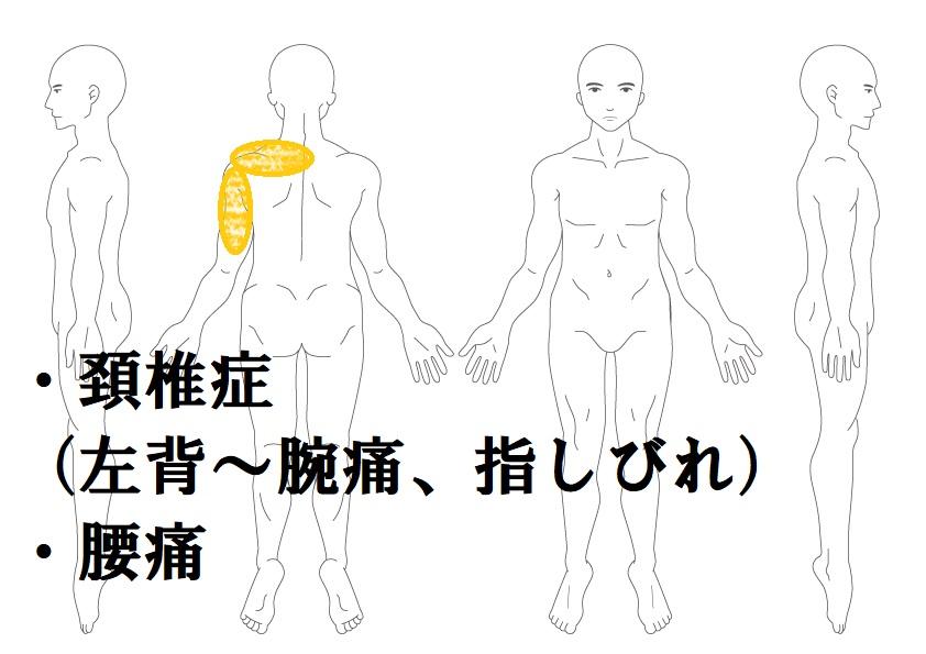 頚椎症の鍼灸