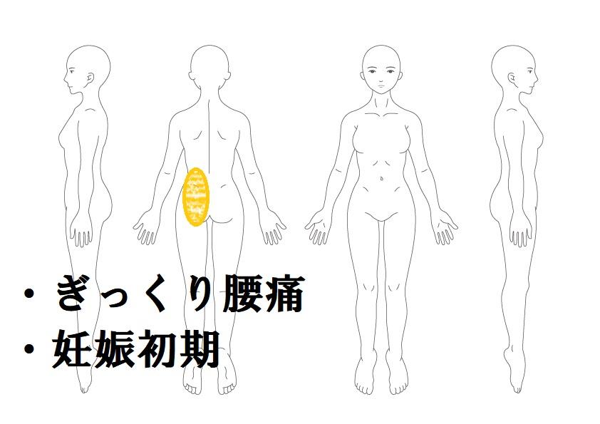 ぎっくり腰と妊娠初期