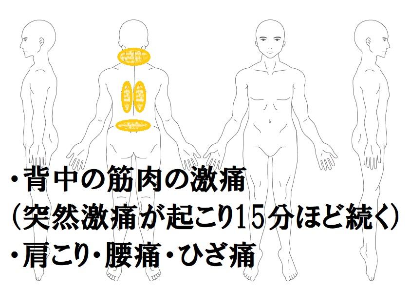背中痛の鍼灸